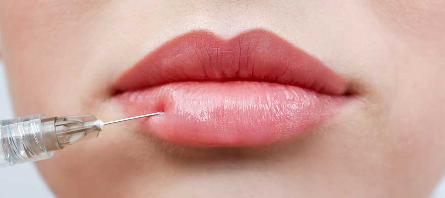 Dermal Fillers in Aesthetics