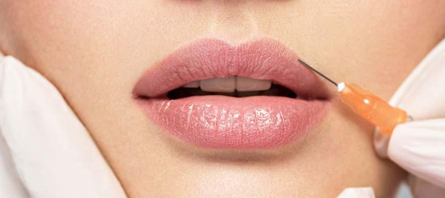 botox lips in Miami_