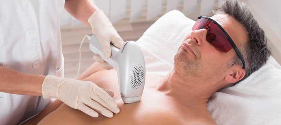 laser hair removal on men